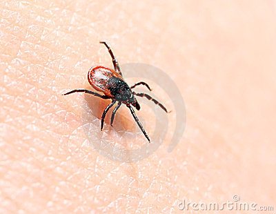 Ticks on human skin.