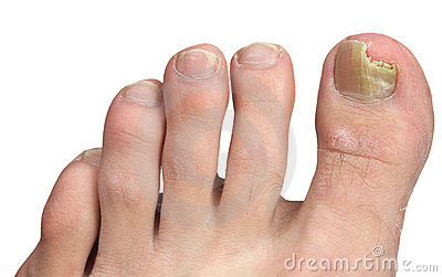 Toenail Fungus at Peak Infection