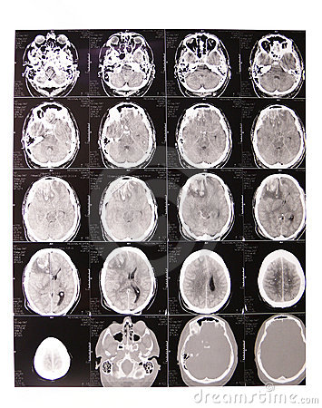Tomography x-ray