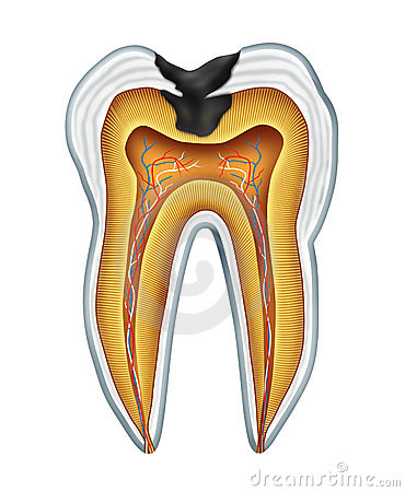Tooth cavity