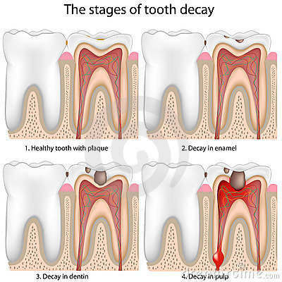 Free Tooth Decay, Eps8 Royalty Free Stock Photos - 19180198