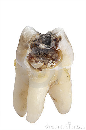 Tooth dental caries