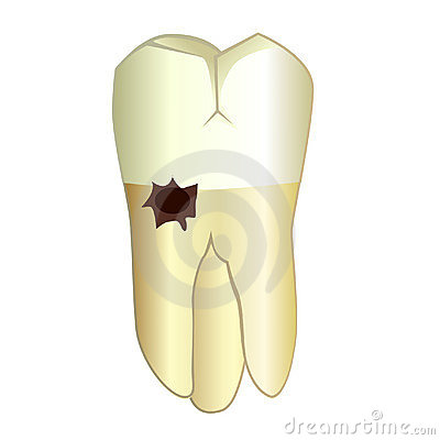 Tooth with a root