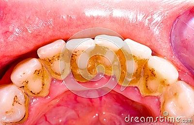 Tooth tartar