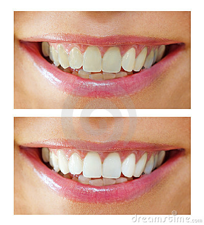 Tooth whitening - before ,after