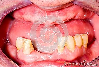 Tootless maxilla