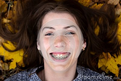 Top view of a pretty girl with blue eyes with a beautiful smile and braces on her teeth, which in the autumn lies on the ground Stock Photo