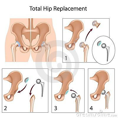 Free Total Hip Replacement Surgery Royalty Free Stock Photos - 23250668