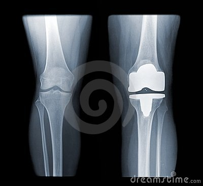 Free Total Knee Replacement Stock Image - 13617611