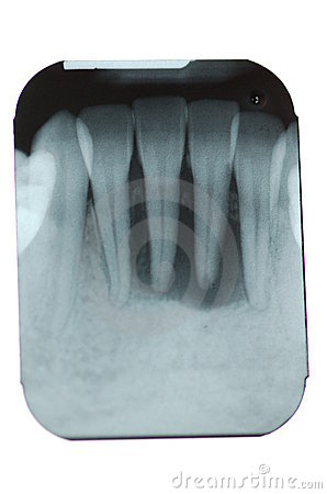 Total Periodontal Bone Loss