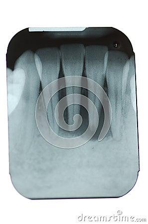 Free Total Periodontal Bone Loss Stock Photo - 7170900