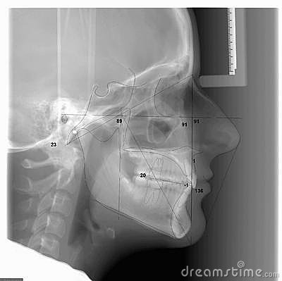 A Traced Cephalometric X-ray