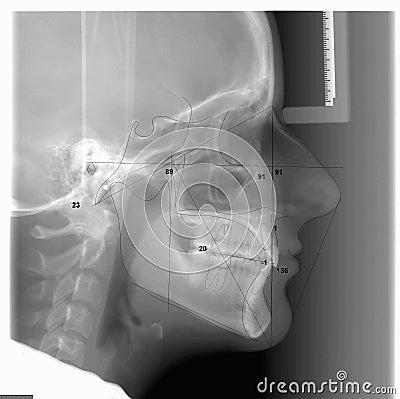 A Traced Cephalometric X-ray
