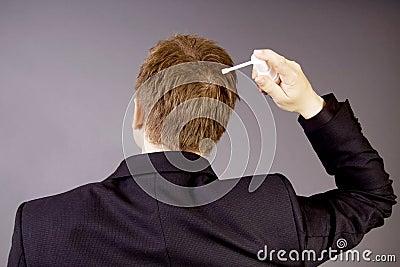 Treating hair loss