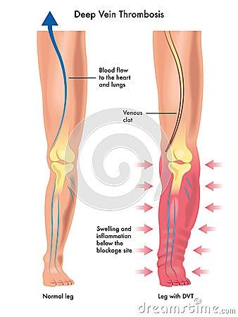 Andare dopo eliminazione di posizione di vene