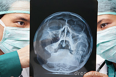 Two Asian surgeon discuss over skeleton roentgen