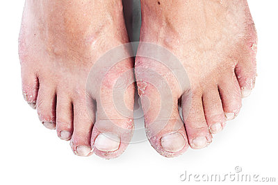 Two male feet with eczema isolated on white