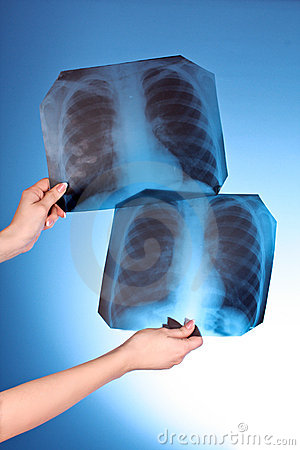 Two X-Ray Images of chest on blue background