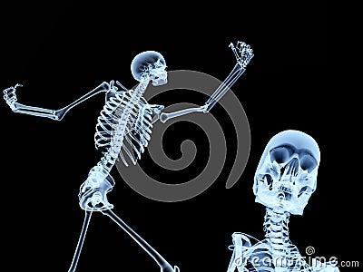 Two Xray Bones 2