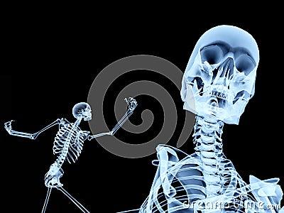 Two Xray Bones 3