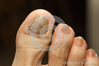 Fungo di unghie di prezzo di Candide