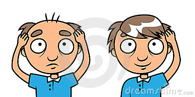Uomo calvo - trattamento di perdita di capelli