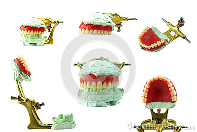Upper denture wax model with jaw