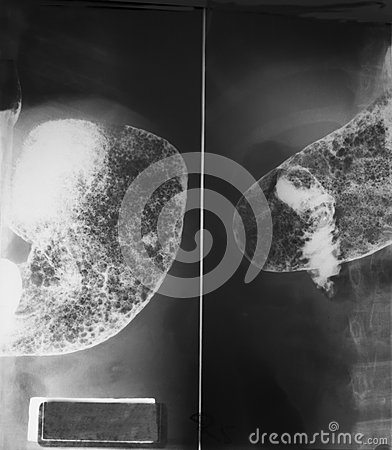 Upper gastro-intestinal (UGI) study of a 21 years old woman, close up at stomach and first part of small intestine both antero-pos Stock Photo