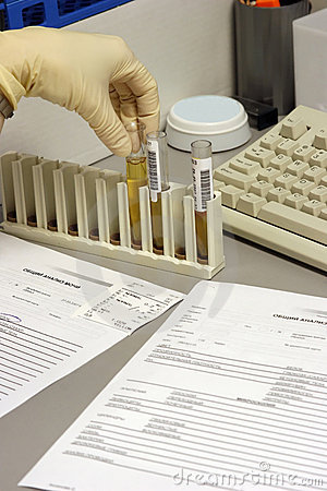 The  urine analysis