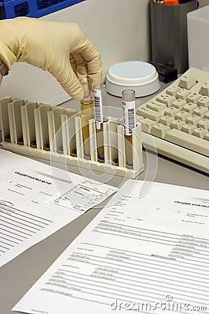 The  urine analysis