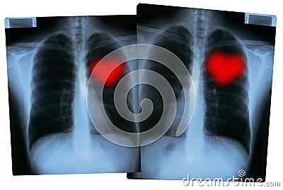 Valentines X-Rays - Love hearts