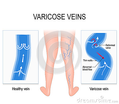 Varicose veins. Medical illustration Vector Illustration