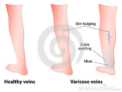 varicose veins stock vector image 43110697 Varicose Veins On Ankles Varicose Veins