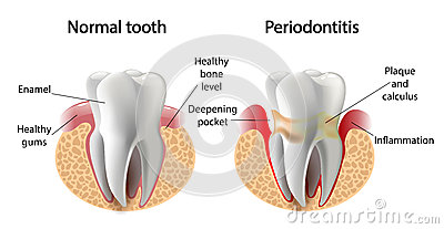 Vector image tooth Periodontitis disease