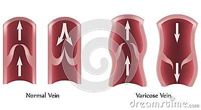 Veines variqueuses et veines normales