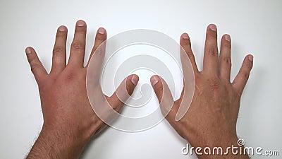 Vergelijking van twee mannelijke die handen door bij of wesp worden gestoken De hand die, ontsteking, roodheid is tekens van besm stock footage