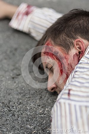 Free Victim Of Terrorist Attack Royalty Free Stock Photos - 57279618