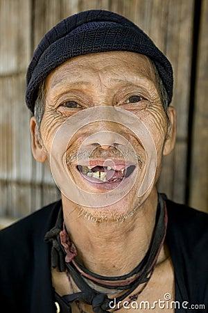Viejo hombre de risa con los malos dientes, Laos