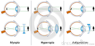 LASIK for Patients with Myopic Astigmatism with High Cylinder