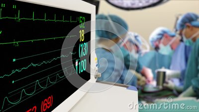 Vital Signs Monitor in hospital surgery room with blur team of surgeons background stock footage