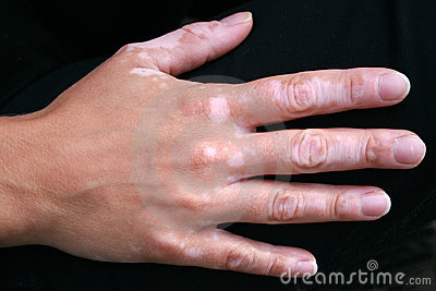 Vitiligo skin condition on hand
