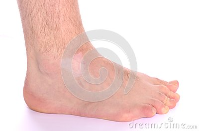 Vitiligo Spot