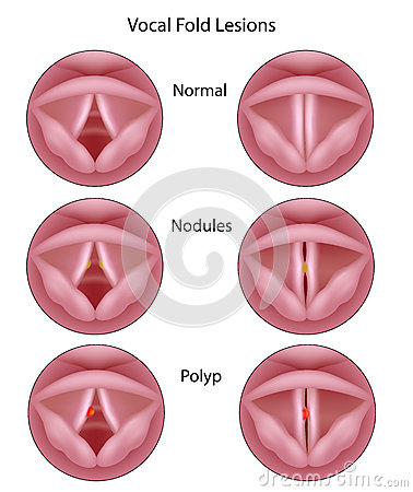Free Vocal Cord Lesions Royalty Free Stock Photos - 27641148