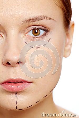 Vor botox