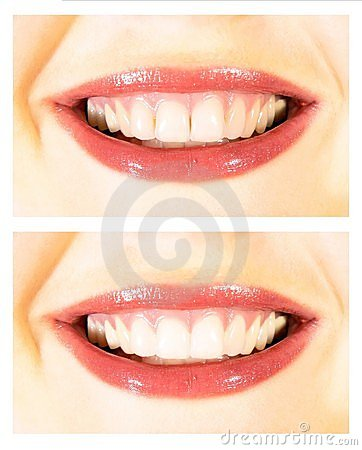 Free White Teeth Wide Smile Royalty Free Stock Photography - 7938817