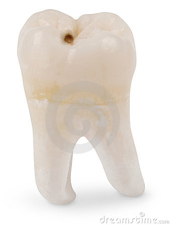 Free Wisdom Tooth With Cavity Stock Image - 4242941