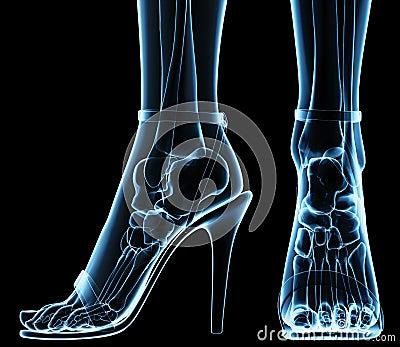 Wolumen feet under x-ray