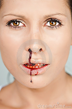 Woman with bloody nose