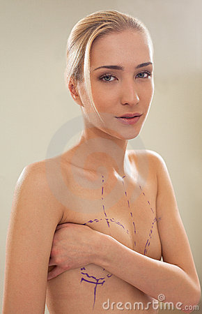 Woman with correction lines on breasts