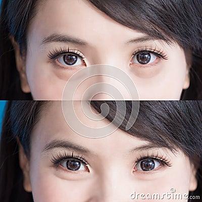 Free Woman Eye Bags Stock Image - 102570631